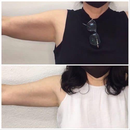 3 SESSIONS ARM FAT SWYTCH